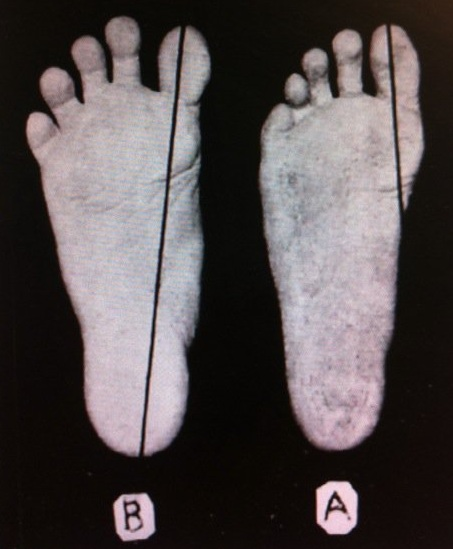 (Left)_(B)_Adult_foot_that_has_never_worn_shoes,_(Right)_(A)_Foot_of_a_boy_who_has_worn_shoes_for_just_a_few_weeks._Plaster_casts